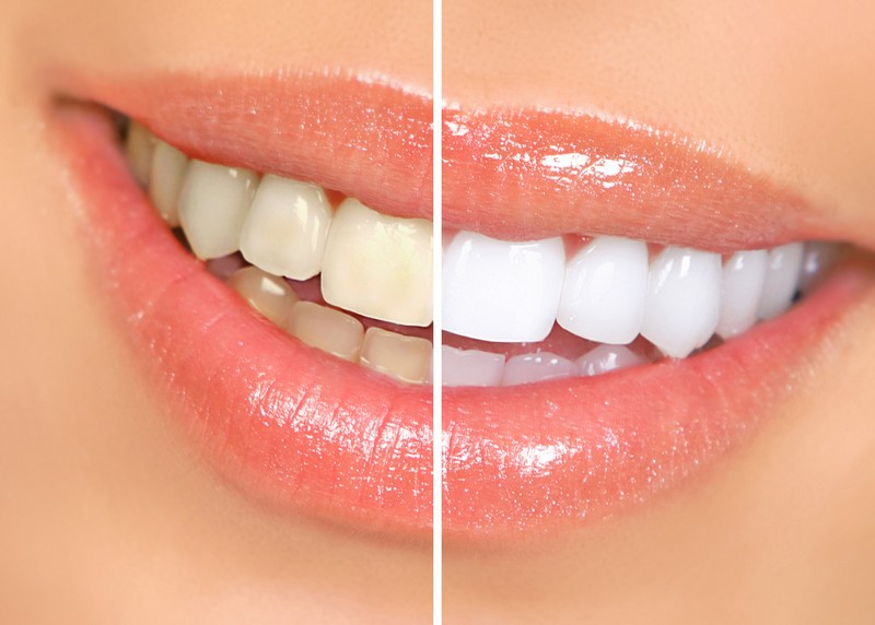 Teeth Whitening Phoenix, AZ